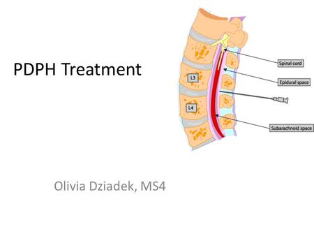PDPH Treatment Olivia Dziadek, MS4.