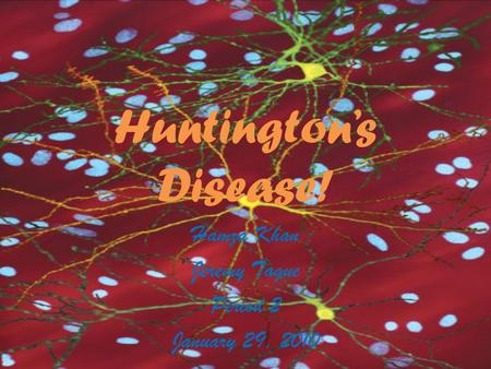 Huntington's Disease! Hamza Khan Jeremy Tague Period 2 January 29, 2010.