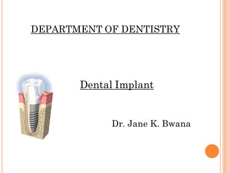 DEPARTMENT OF DENTISTRY Dental Implant Dr. Jane K. Bwana.