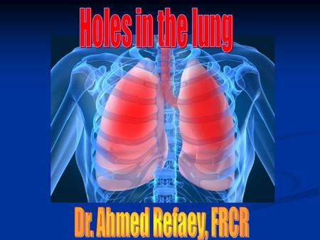 Holes in the lung Dr. Ahmed Refaey, FRCR.