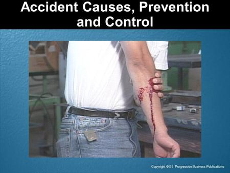 Accident Causes, Prevention and Control