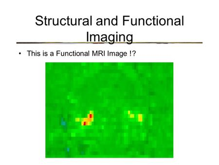 Structural and Functional Imaging This is a Functional MRI Image !?