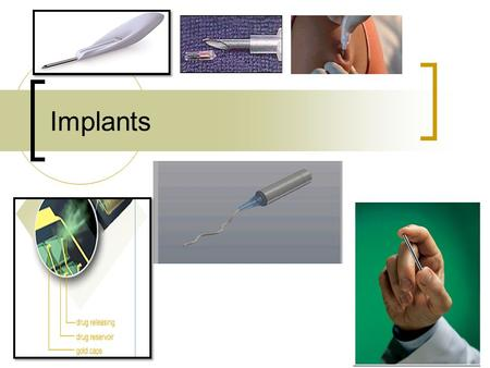 Implants. Implants: Definition: A sterile drug delivery device for subcutaneous implantation having the ability to deliver drug at a controlled rate over.