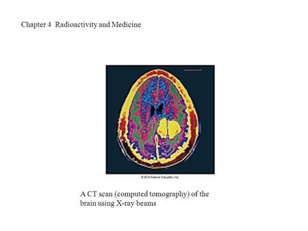 Chapter 4 Radioactivity and Medicine A CT scan (computed tomography) of the brain using X-ray beams.