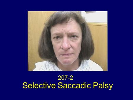 207-2 Selective Saccadic Palsy. Selective Saccadic Palsy after Cardiac Surgery Selective loss of all forms of saccades (voluntary and reflexive quick.