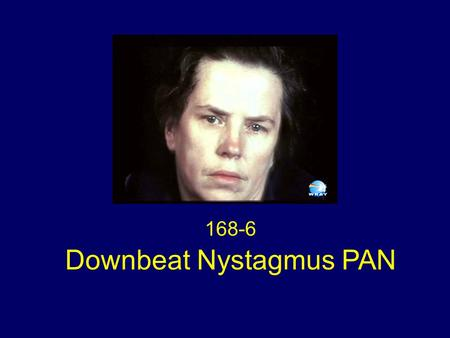 168-6 Downbeat Nystagmus PAN. No nystagmus initially in primary gaze A period of downbeat nystagmus in central gaze A period of periodic alternating nystagmus.