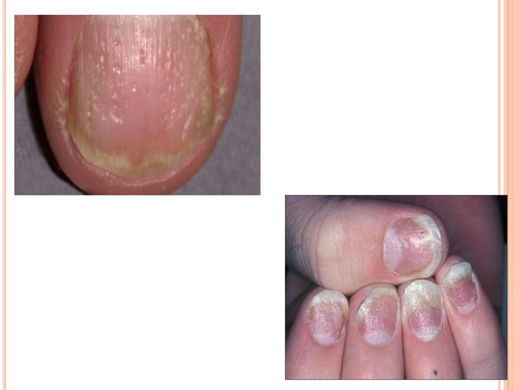 nail changes in psoriasis ppt