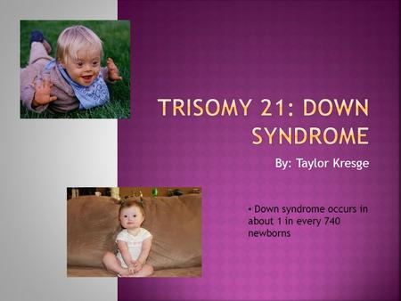 By: Taylor Kresge Down syndrome occurs in about 1 in every 740 newborns.