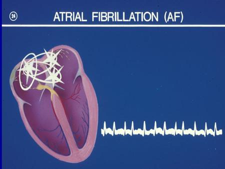 Atrial fibrillation wavelets propagating in different directions disorganised atrial depolarisation without effective atrial contraction f waves 350-600.