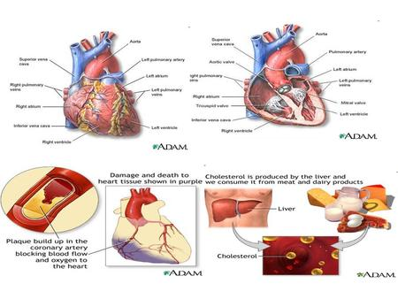 Coronary heart disease (CHD) is the leading cause of death