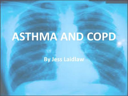 ASTHMA AND COPD By Jess Laidlaw. Overview 1)Asthma 2)COPD 3)Comparison.