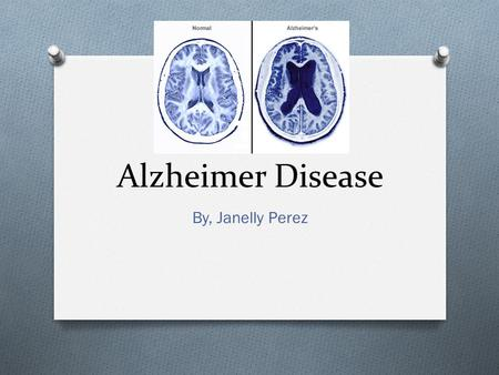 Alzheimer Disease By, Janelly Perez.