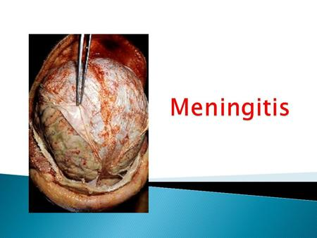 Students should  Specify microorganisms causing meningitis  Delineate the therapeutic strategy  Classify the relevant antibiotics used  Expand on.