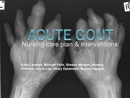 Nursing care plan & interventions