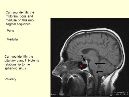 Cavernous Sinus Syndrome Imaging A Myriad Of Etiologies Ppt Video
