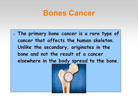 Bones Cancer The primary bone cancer is a rare type of cancer that affects the human skeleton. Unlike the secondary, originates in the bone and not the.
