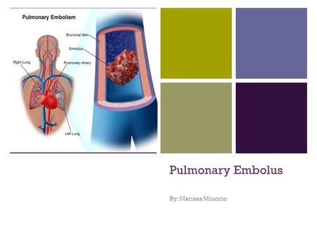 + Pulmonary Embolus By: Marissa Miuccio. + What is a Pulmonary Embolism Pulmonary Embolism, or PE, is a sudden blockage in a lung artery. The blockage.