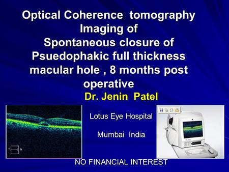 Optical Coherence tomography Imaging of Spontaneous closure of Psuedophakic full thickness macular hole, 8 months post operative Dr. Jenin Patel Lotus.