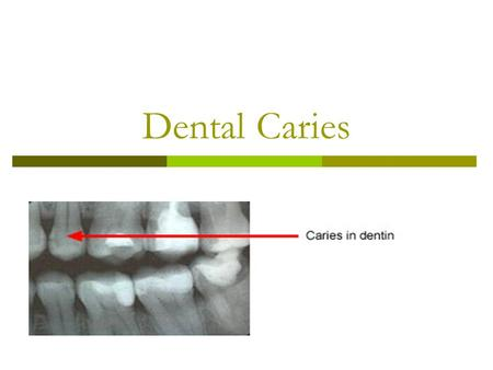 Dental Caries. Dental caries destroy the mineral component of teeth, causing decay.