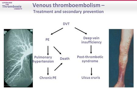 LIFEBLOOD THE Thrombosis CHARITY Venous thromboembolism – Treatment and secondary prevention Ulcus cruris Chronic PE PE DVT Post-thrombotic syndrome Death.