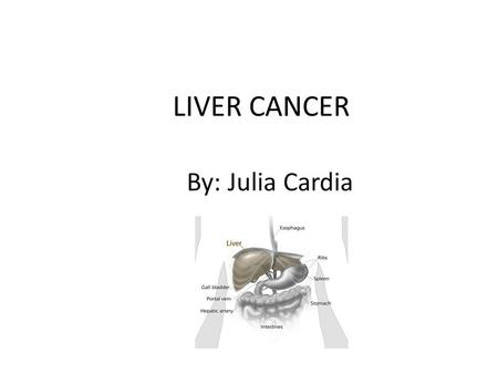 LIVER CANCER By: Julia Cardia. Causes Cancer is spread from another part of the body (usually colon, lung, breast) and goes to the liver…this is known.