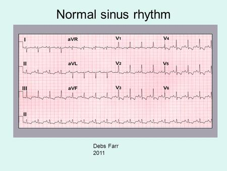 Normal sinus rhythm Debs Farr 2011.