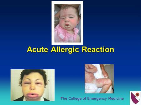 The College of Emergency Medicine Acute Allergic Reaction.