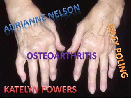 Called the wear and tear arthritis, osteoarthritis is the most common form of arthritis. Nearly all vertebrates suffer from osteoarthritis, including.