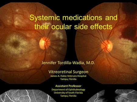 Systemic <strong>medications</strong> and their ocular side effects Jennifer Tordilla-Wadia, M.D. Vitreoretinal Surgeon James A. Haley Veterans Hospital Tampa, Florida.