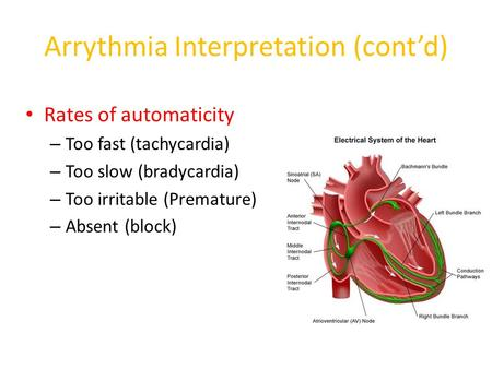 Arrythmia Interpretation (cont'd) Rates of automaticity – Too fast (tachycardia) – Too slow (bradycardia) – Too irritable (Premature) – Absent (block)