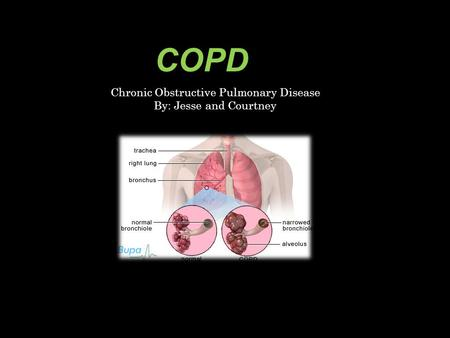 COPD Chronic Obstructive Pulmonary Disease By: Jesse and Courtney.