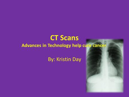 CT Scans Advances in Technology help cure cancer. By: Kristin Day.