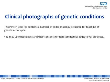 © 2009 NHS National Genetics Education and Development CentreGenetics and Genomics for Healthcare www.geneticseducation.nhs.uk Clinical photographs of.