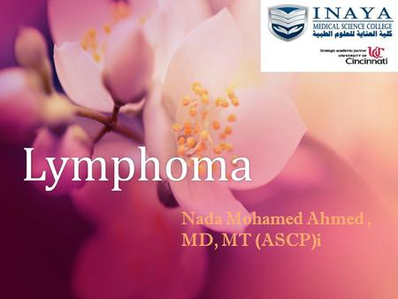 Lymphoma Nada Mohamed Ahmed , MD, MT (ASCP)i.
