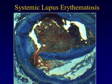 Systemic Lupus Erythematosis. The Immune System Immunology Connection to Tissue Engineering Develop methods to selectively block immune response to engineered.