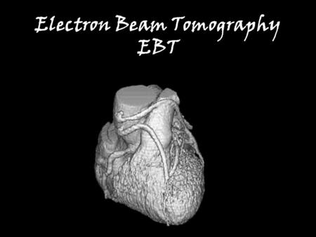 Electron Beam Tomography EBT. I've never heard of it, (and it doesn't sound good) Electrons –Atomic particles –Have mass Wouldn't a beam of particulate.