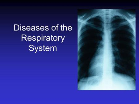 Diseases of the Respiratory System. Infections of the Respiratory tract Most common entry point for infections Upper respiratory tract –nose, nasal cavity,