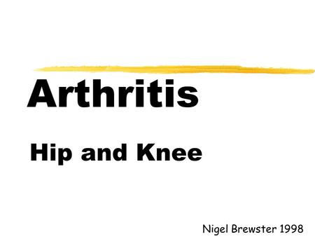 Arthritis Hip and Knee Nigel Brewster 1998. Aims l Types of arthritis l Symptoms of arthritis l Signs of arthritis l Treatment of arthritis.
