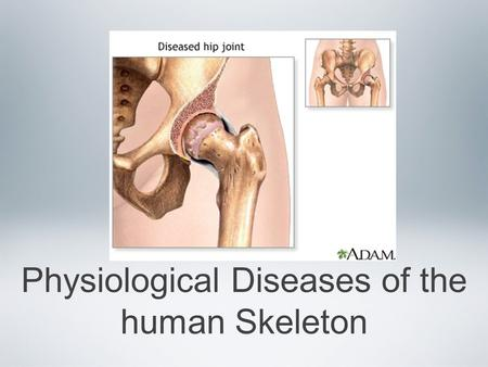 Physiological Diseases of the human Skeleton. Inflammatory Disorders of joints Joint pain and discomfort can be caused by many factors Bursitis Arthritis.