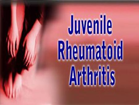  Normal knee anatomy  Symptoms and pathology of <strong>juvenile</strong> <strong>rheumatoid</strong> <strong>arthritis</strong>  Pain management  Stages of development and psychosocial issues  Multidisciplinary.