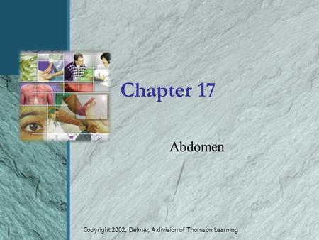 Copyright 2002, Delmar, A division of Thomson Learning Chapter 17 Abdomen.