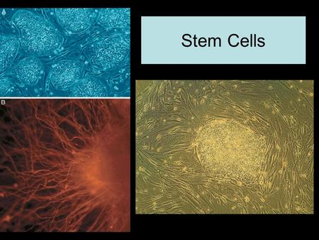 Stem Cells. Cell Differentiation and Stem Cells Major Topics for Discussion: 1) What are Stem Cells? 2) What are the major types of Stem Cells and where.