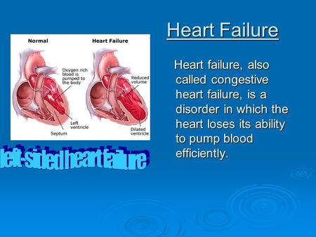 Coronary heart diseases ppt.