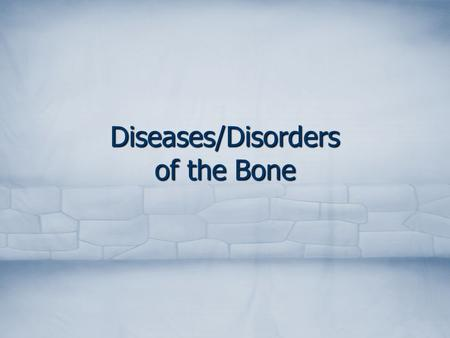 Diseases/Disorders of the Bone. Common Foot Disorders Hallux valgus Hallux valgus Hammertoe Hammertoe.