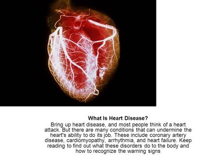 What Is Heart Disease? Bring up heart disease, and most people think of a heart attack. But there are many conditions that can undermine the heart's ability.