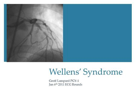 Wellens' Syndrome Geoff Lampard PGY-1 Jan 6 th 2011 ECG Rounds.