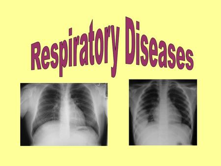 Normal Lung Tissue Name some diseases that affect the respiratory system: Asthma Bronchitis Lung cancer COPD Emphysema Pneumonia Pleuritis Common cold.