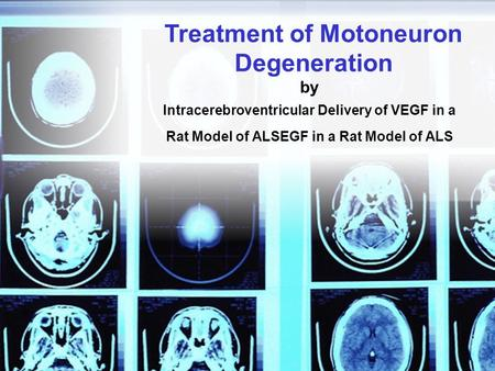 By Intracerebroventricular Delivery of VEGF in a Rat Model of ALSEGF in a Rat Model of ALS Treatment of Motoneuron Degeneration.