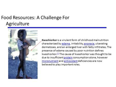 Food Resources: A Challenge For Agriculture Kwashiorkor is a virulent form of childhood malnutrition characterized by edema, irritability, anorexia, ulcerating.