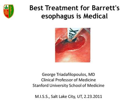 Best Treatment for Barrett's esophagus is Medical George Triadafilopoulos, MD Clinical Professor of Medicine Stanford University School of Medicine M.I.S.S.,